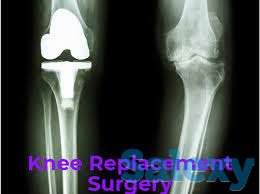 Dr. Shailendra Patil Reviews Knee Replacement Surgeon in Mulund, photo 1